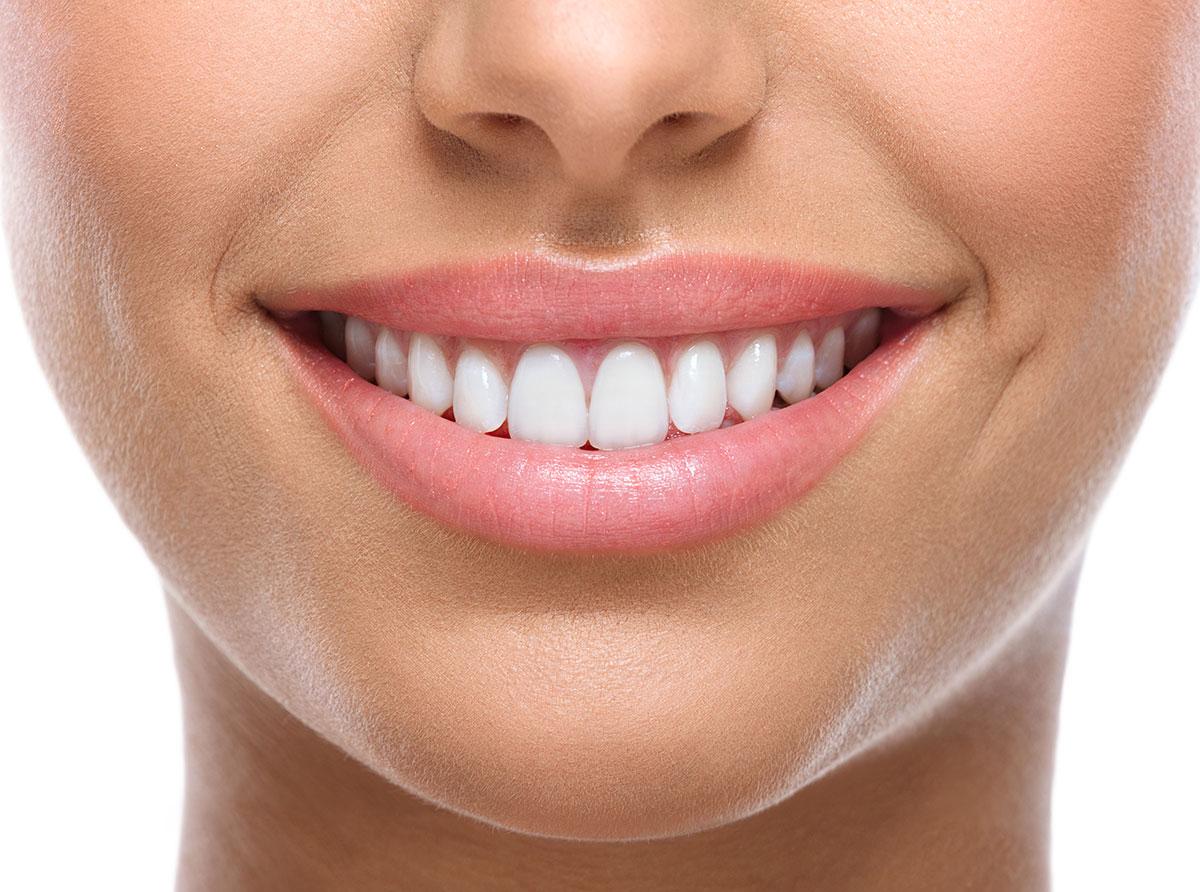 Immagine di una bocca femminile per spiegare cosè lo squiibrio orofacciale